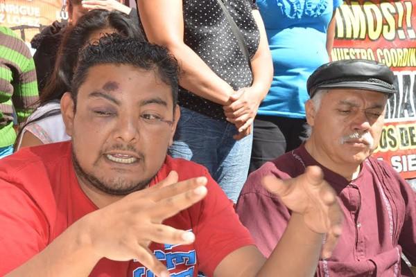 Denuncian golpiza a miembro del FPR en Oaxaca (12:37 h)