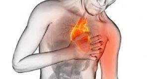 estrategia-codigo-infarto